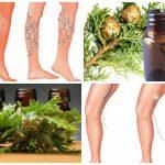 ayuda el aceite esencial de cipres a eliminar las varices